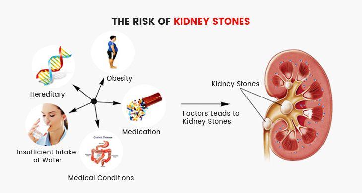 The risk of kidney stones kidney beans pinterest kidney stones the risk of kidney stones ccuart Gallery
