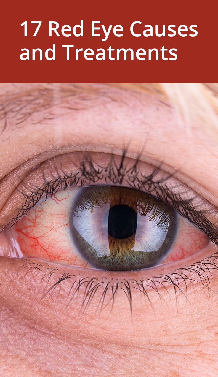 Causes of redness of the eyes - what they are 3