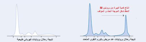 الورم النقوي المتعدد Multiple Myeloma Multiple Myeloma Myeloma Chart