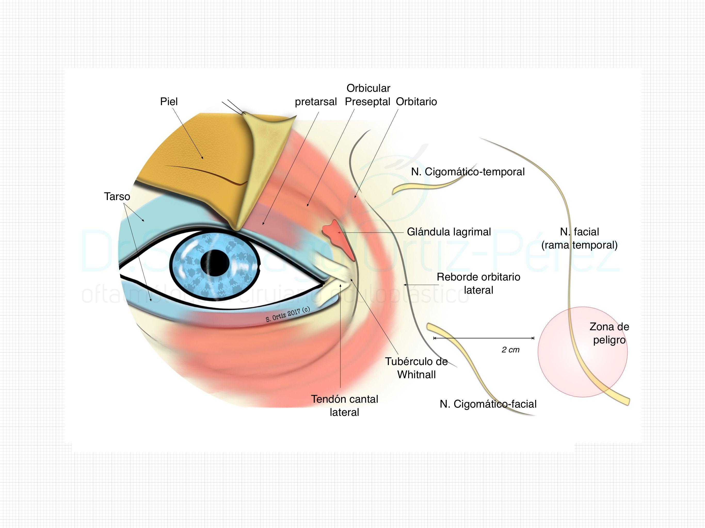 En esta ilustración se muestra la anatomía del canto lateral del ojo ...