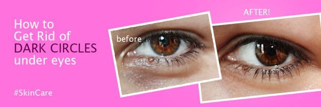 How to Get Rid of DARK CIRCLES under eyes fast Naturally ...
