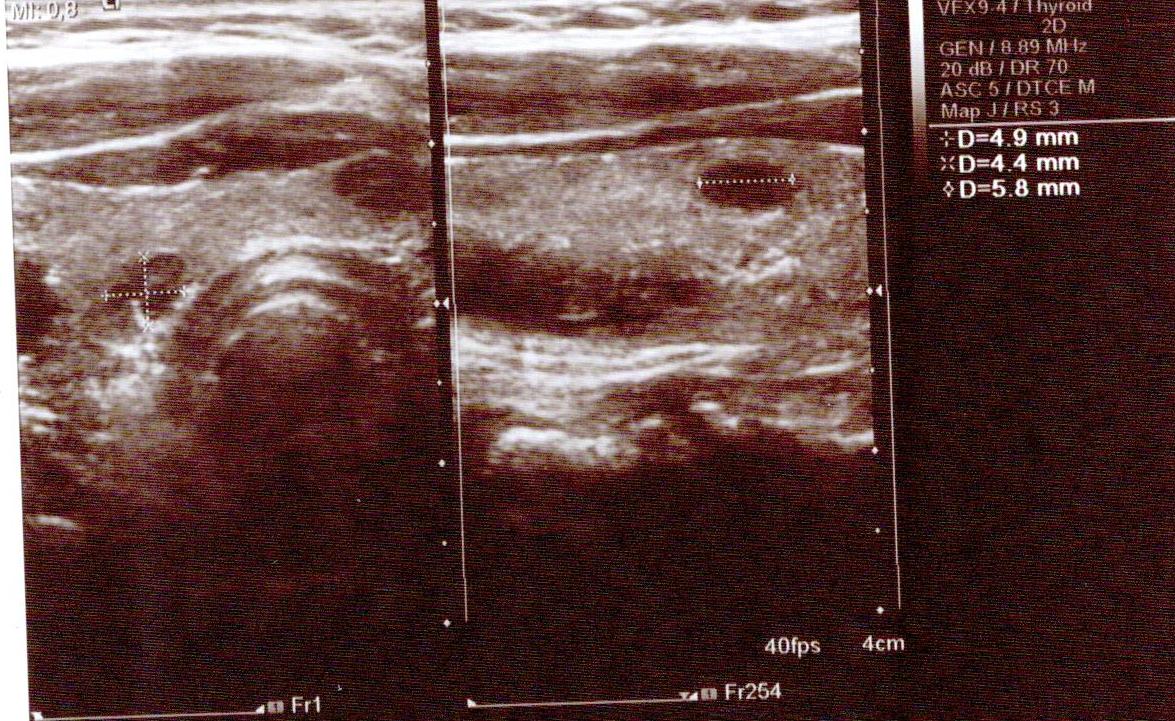 5 Mm Hypoechoic Thyroid Nodule