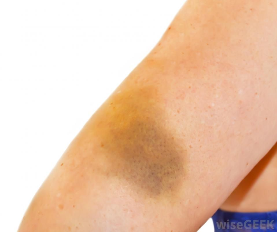What Are the Different Causes of Arm Bruising? (with pictures