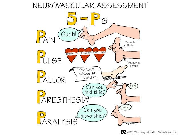 Nursing Mnemonics and Tips: Neuro Assessment | Neuro ...