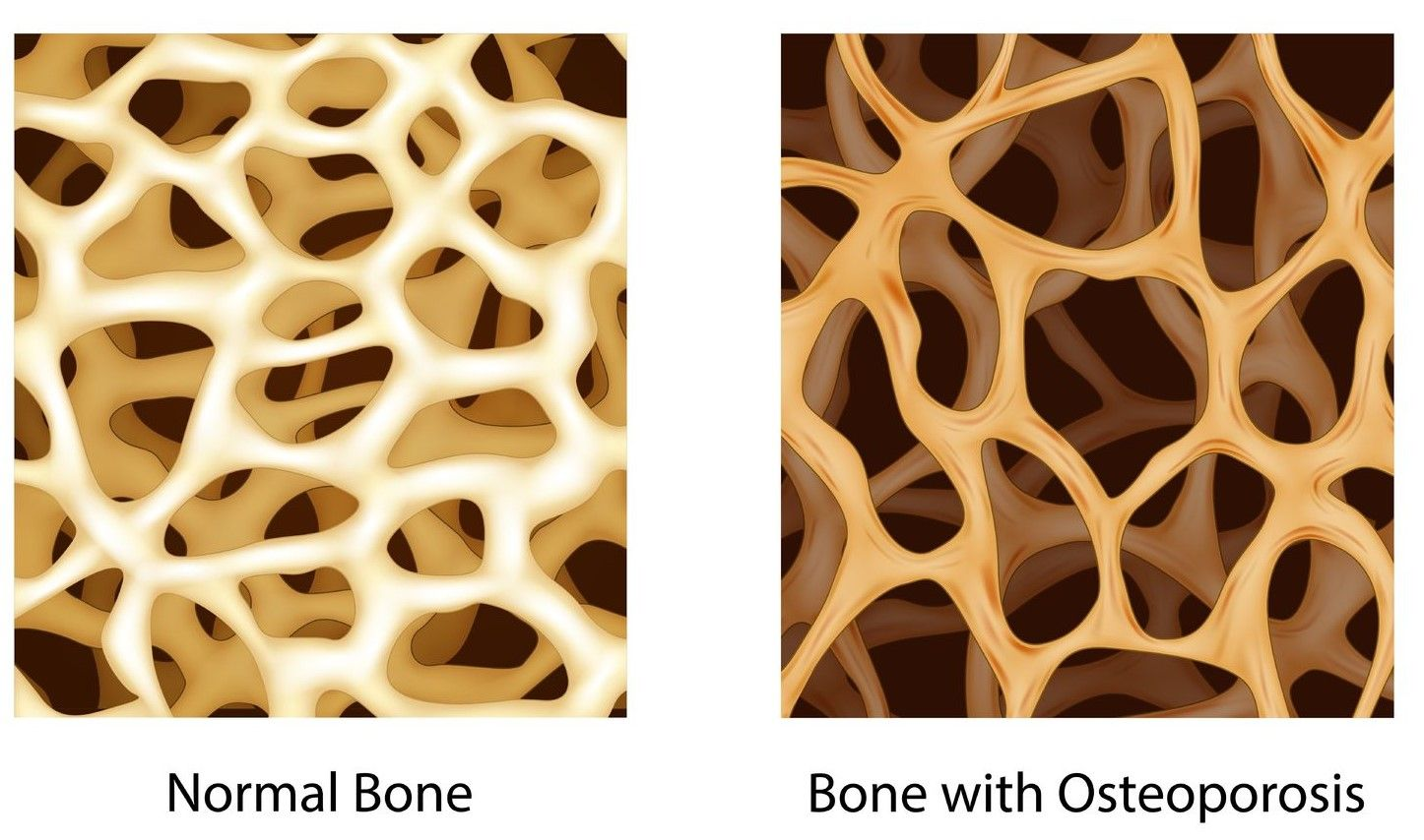 27++ Low bone density and osteoporosis ideas in 2021