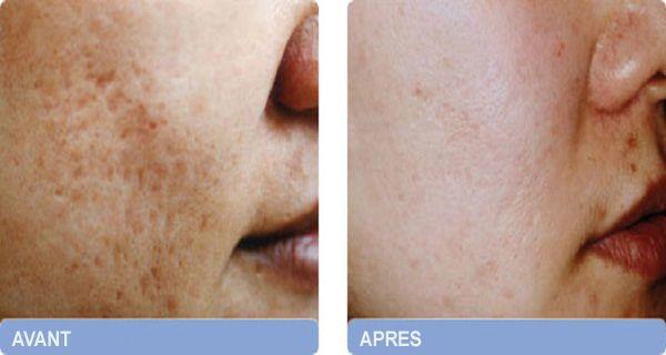 Extrêmement Voici comment éliminer les cicatrices d'acné pour toujours  GM38