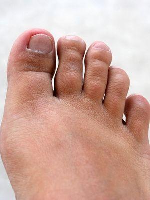 How to File Down Thick Toe Nails | SPA LA LA | Morton\'s neuroma ...
