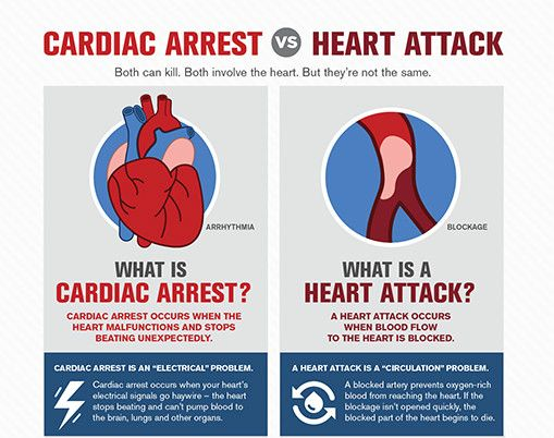 Cardiac Arrest Vs Heart Attack Both Can Kill Both Involve The Heart But They Are Not The Same In Cas What Is Heart Attack Medical Knowledge Heart Attack