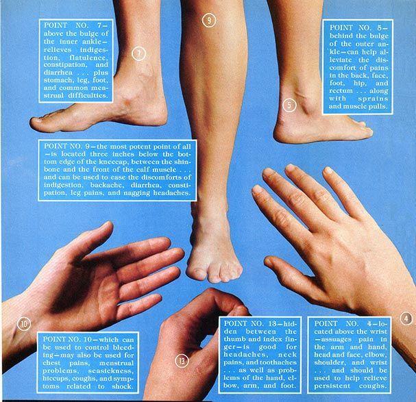 Acupuncture for Migraines   Acupressure treatment ...