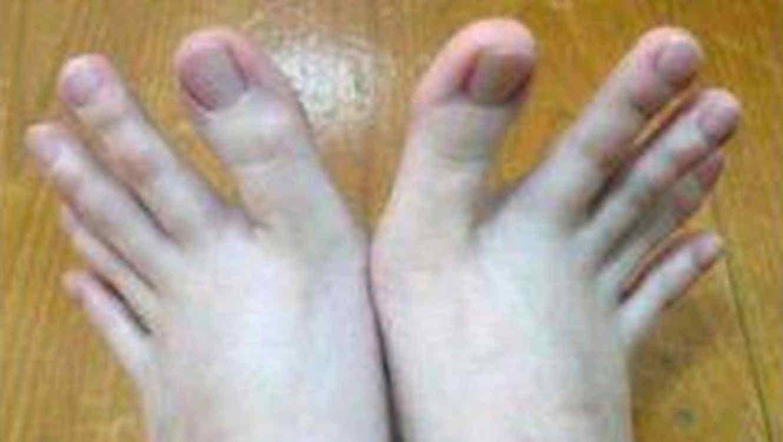 cameliapr: La historia de la joven que tiene dedos de manos e...