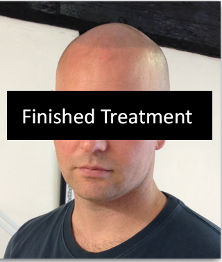 Hair Falling Treatment,Get hair loss treatment for permanent hair loss solution at well known hair loss clinic in the UK.By lgshairclinic.com