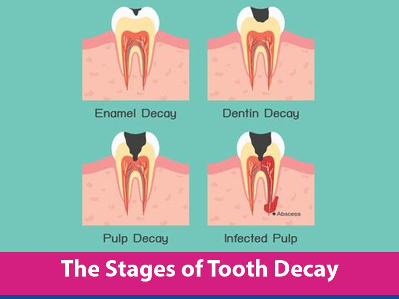 27 best images about Tooth Decay on Pinterest | Pain d'epices ...