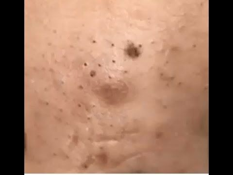 how to get rid of pimples and blackheads on face