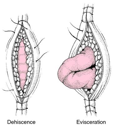 Dehiscence A Splitting Open Nursing Mnemonics Wounds Nursing Fundamentals Of Nursing