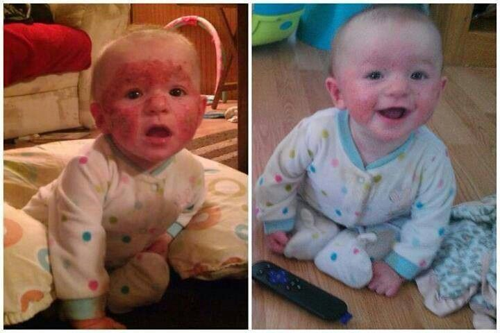 Yes we can help | Baby eczema, Seacret direct products ...