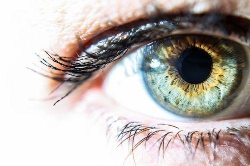 lynda olsen central heterochromia-1-5