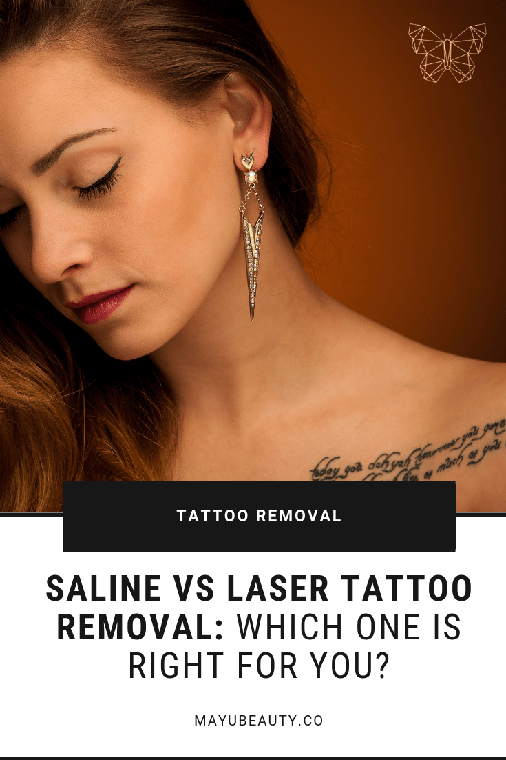 """Do you have """"ink regret""""? Saline tattoo removal is a kinder"""