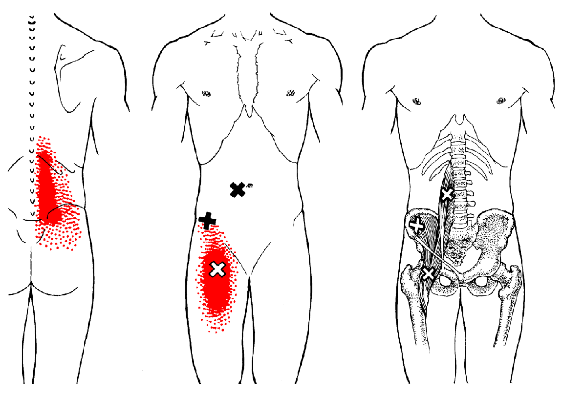 Hüftmuskel | The Trigger Point & Referred Pain Guide | Gesundheit ...