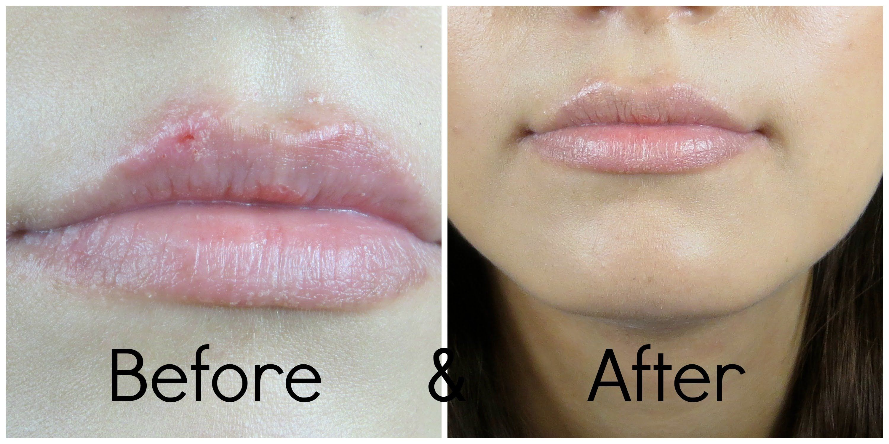 5a54731110e3ae7dda2a3d563fe65af6 - How To Get Rid Of Cold Sores Before They Appear