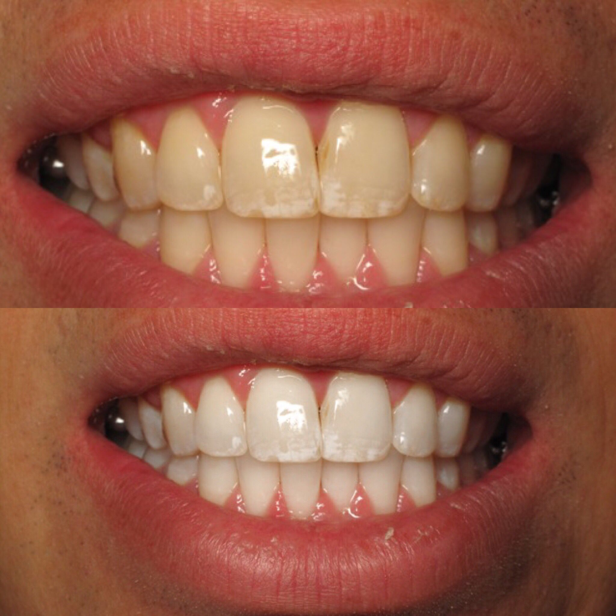 Colgate teeth whitening teeth whitening products pinterest teeth - White System No More Abrasive Treatments And You Do Not Have To Damage The Tooth Enamel Find This Pin And More On Teeth Whitening