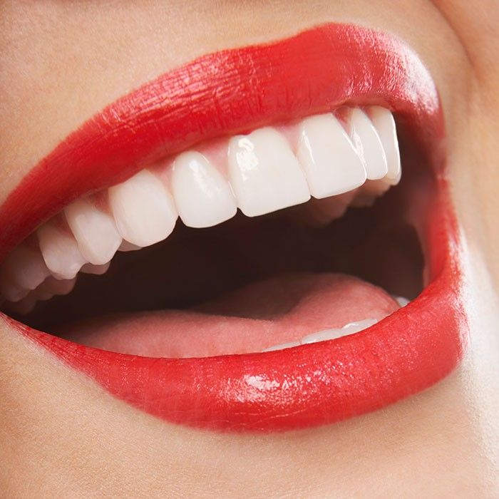 how to make teeth whiter instantly at home