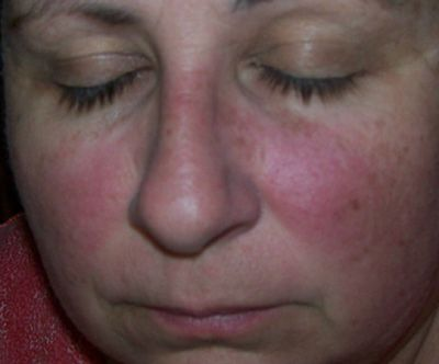 Cervical cancer facial rash