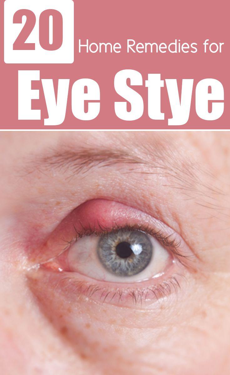 26 Effective Home Remedies To Get Rid Of Eye Stye Remedies