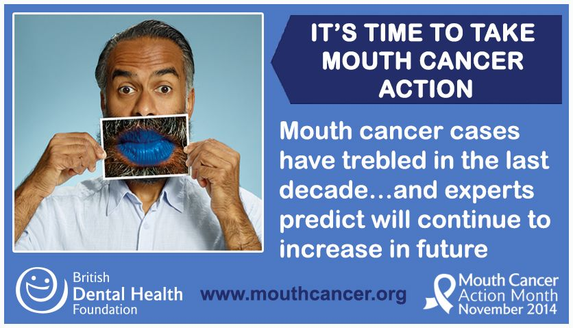 LIKE and SHARE: Why it is important to get involved and spread the word! Mouth cancer cases have trebled in the last decade…and it is one of few cancers that experts predict will continue to increase in the coming years - http://www.mouthcancer.org/what-is-mouth-cancer-action-month/ #MCAM14 #Bemouthaware #bluelipselfie #mouthcancer #raiseawareness