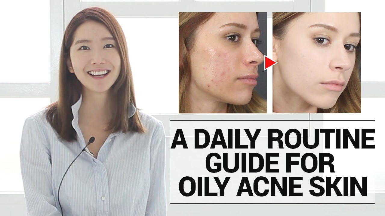 How To Take Care Of Oily Acne Prone Skin A Daily Routine Skin Care Skin Care Routine Skin Care Products Skin Car Acne Prone Skin Healthy Skin Care Skin