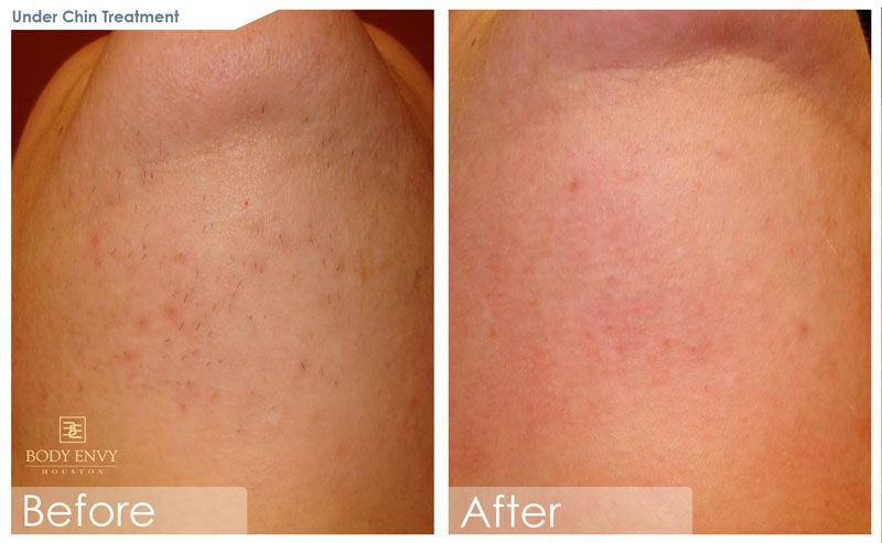 Laser Hair Removal Home Laser Guide Effectiveness Truth Or