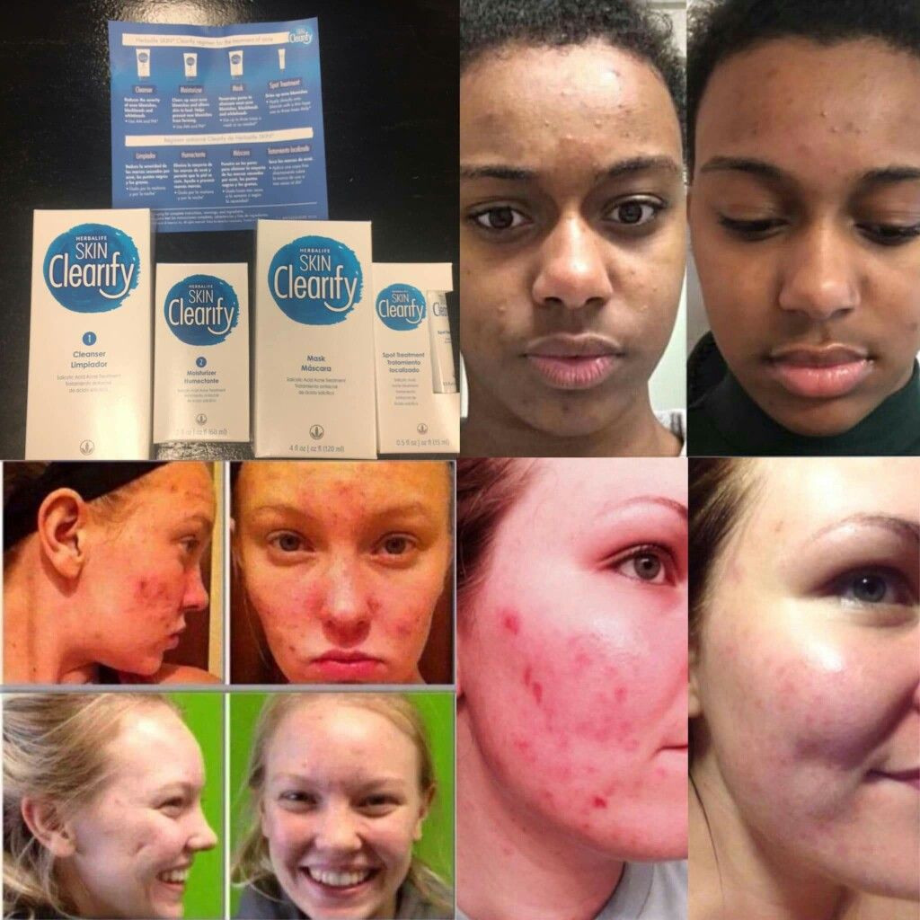 Acne Solution Herbalife Acne Solutions Nutrition Blog