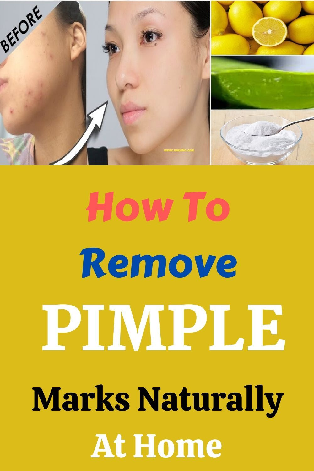 Quickly home scars remedies to remove acne 35 Tips