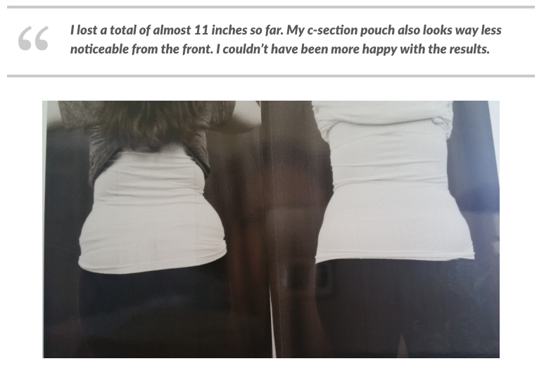 My CoolSculpting Update- I lost over 10 inches   Cool ...