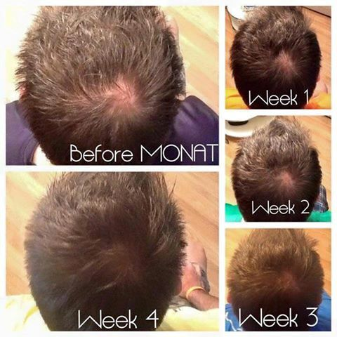 This Is A Partners Husband Works Great On Men Monat Is The Best Hair Care System For Thinning Or Aging Hair Ou Monat Hair Men Losing Hair Hair Growth For Men