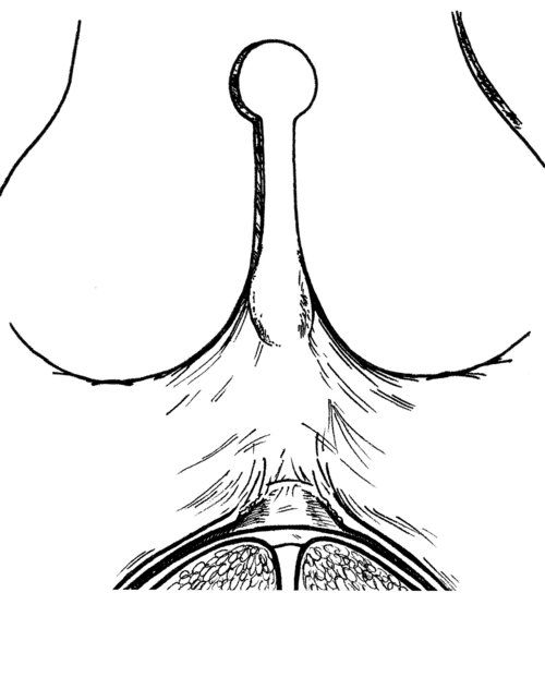 The Misunderstanding Of Posterior Tongue Tie Anatomy And Release