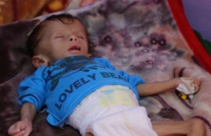 اخر اخبار اليمن - الصحة العالمية: تراجع وباء الكوليرا في اليمن