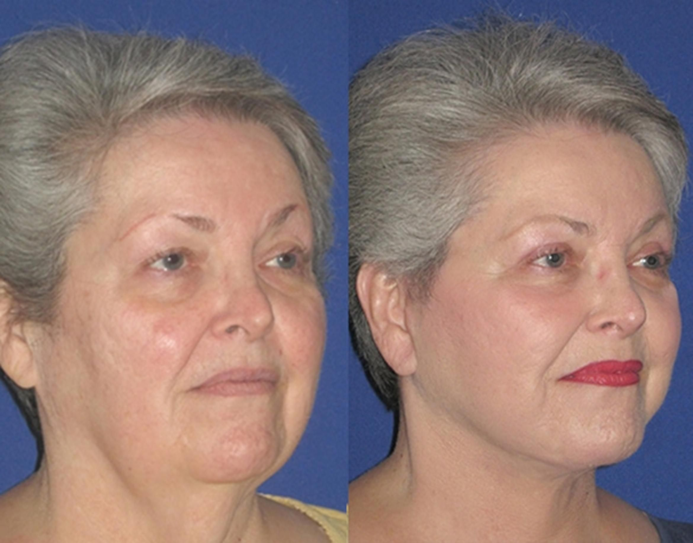 Cosmetics in 2020 Face lift surgery, Co2 laser