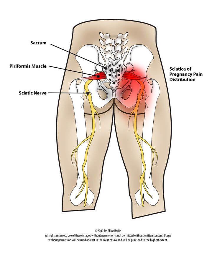 Yoga for the Psoas | Psoas Stretch | Pinterest | Hip pain, Hip ...