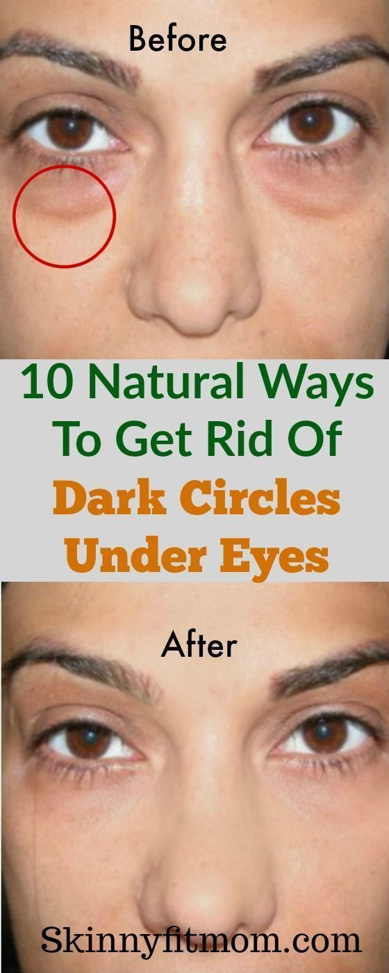 Dark circles can spoil make-up made for hours. Use the ...