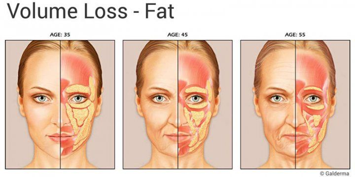 facial Loss volume of