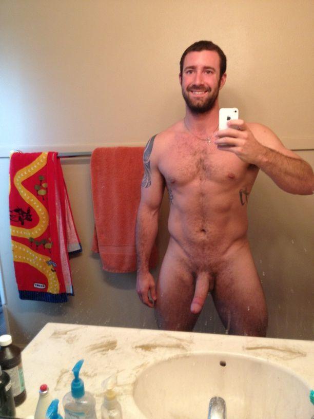 Vitiligo gay porn