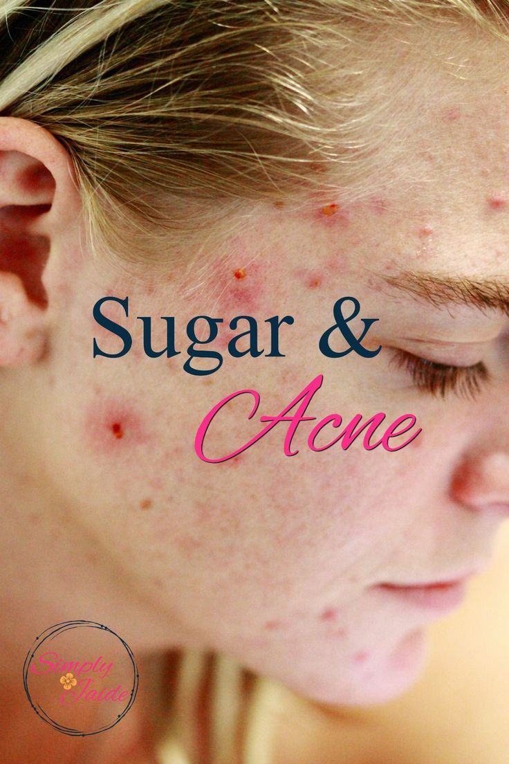 5 Ways to Stop Sugar Cravings Now Cystic acne remedies