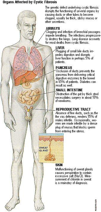 Pin de Keri Crabtree en Nursing | Respiratory | Pinterest | Medicina ...