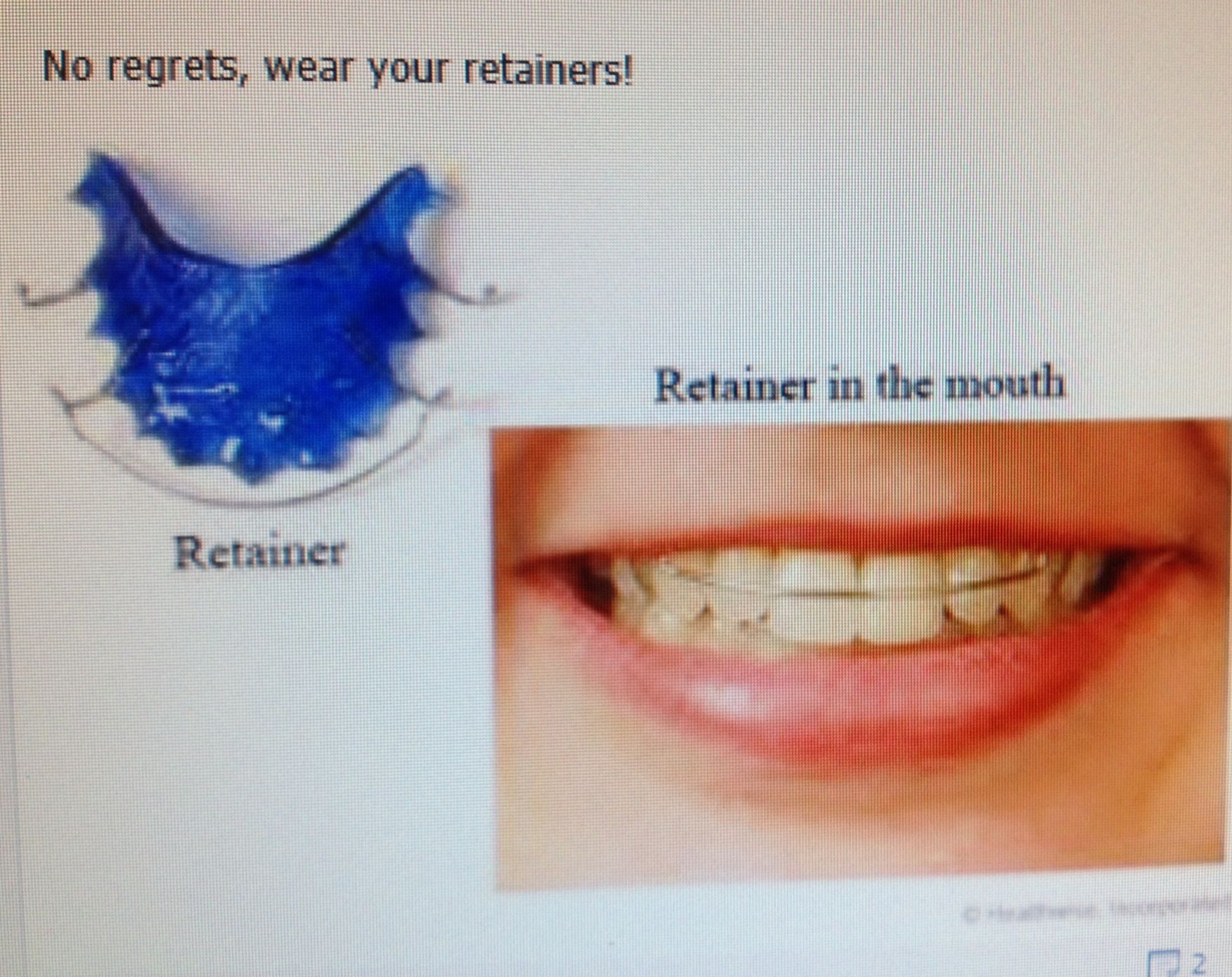 My Retainer Broke And My Teeth Have Moved - Update Today