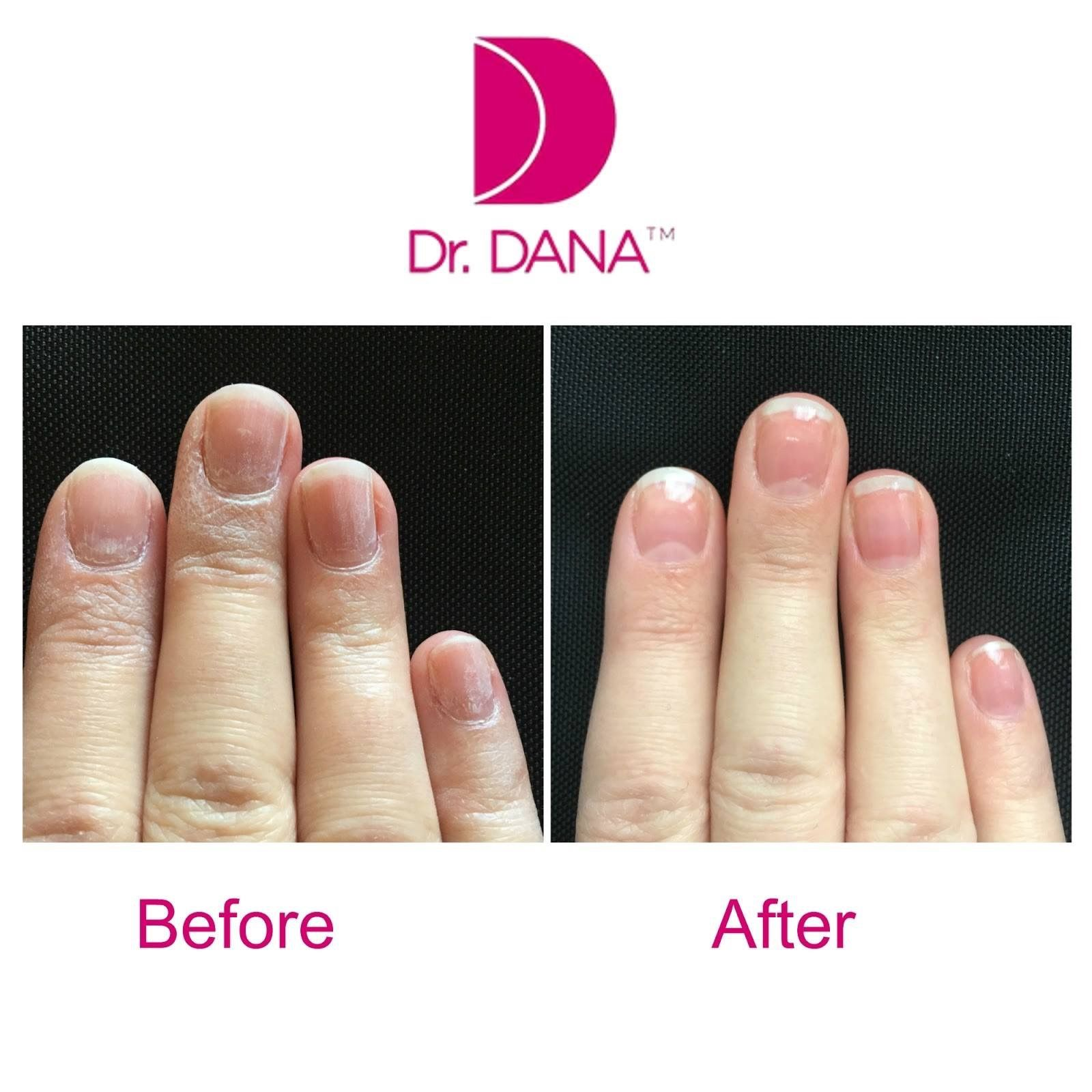 Proven Dr Dana Nail Renewal System Online 3 In A Kit Nuskin Healthy Nails Gel Nails
