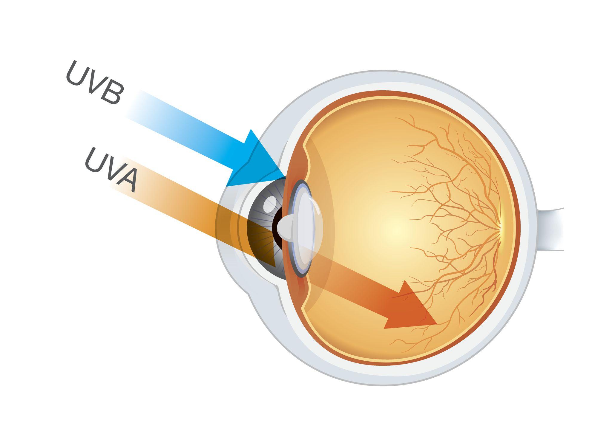 Sonnenbrand Augen