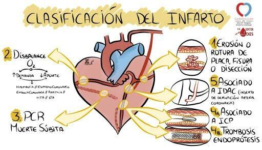 Fisiopatología del Infarto vía @cardioteca