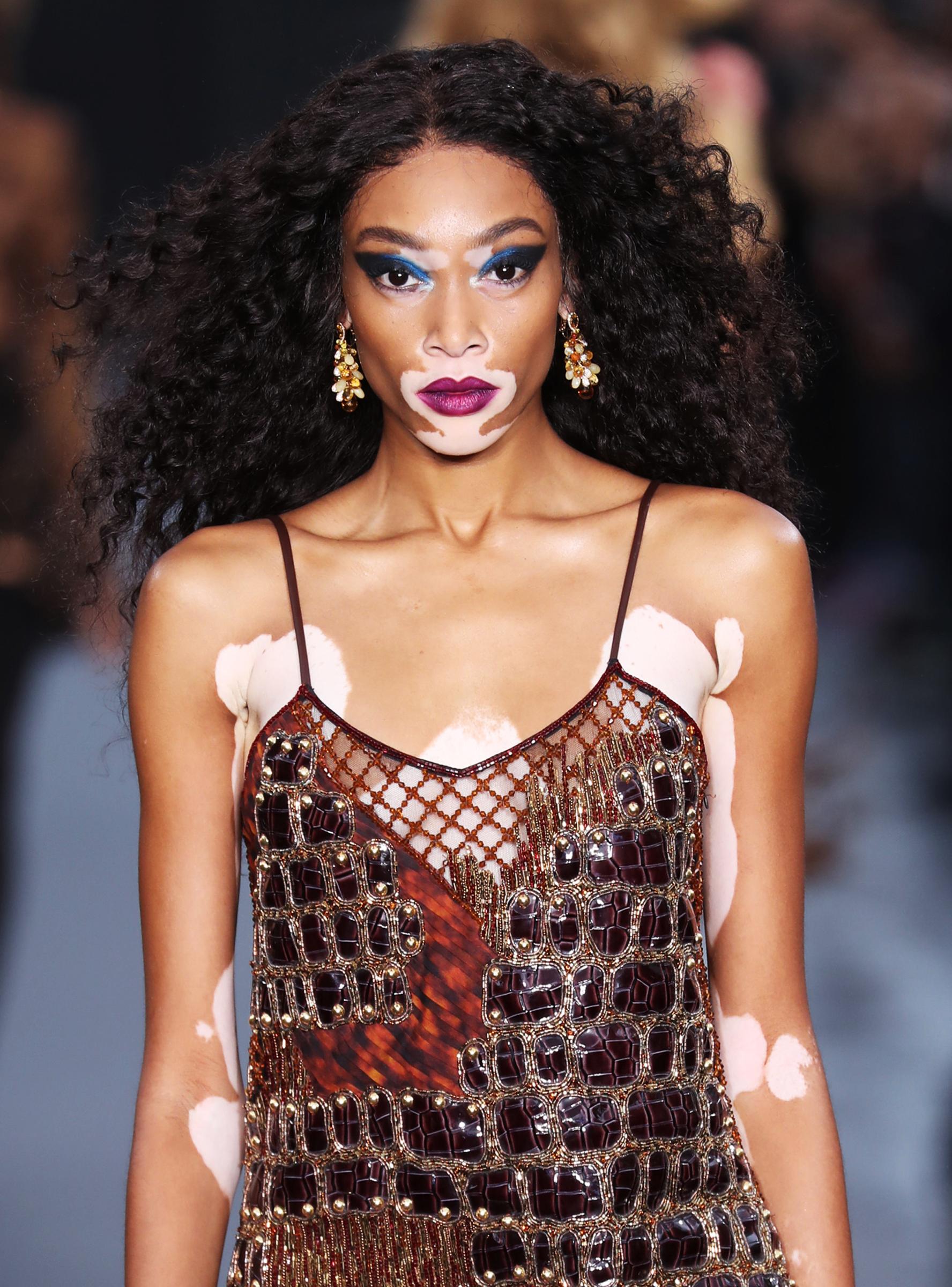 mariposa progresivo Joya  Why These Dolls With Vitiligo Are Such A Big Deal+#refinery29 | Winnie  harlow, La fashion week, Famous models