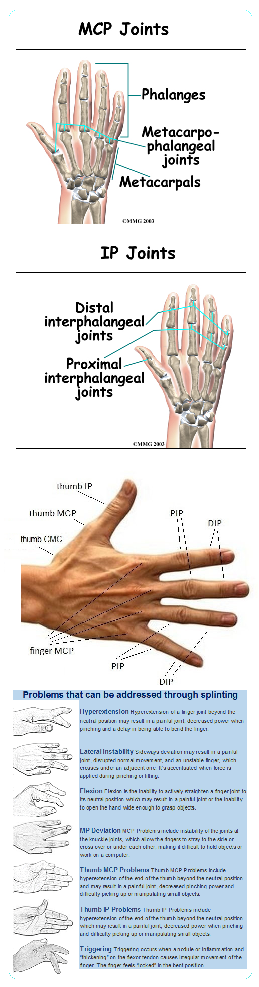 Names of the joints of the hands. Splinting may help reduce pain and ...