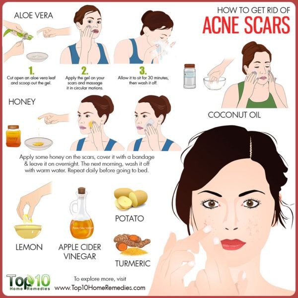 what will get rid of acne